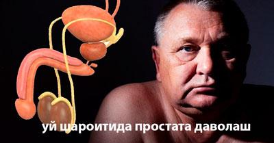 уй шароитида простата даволаш